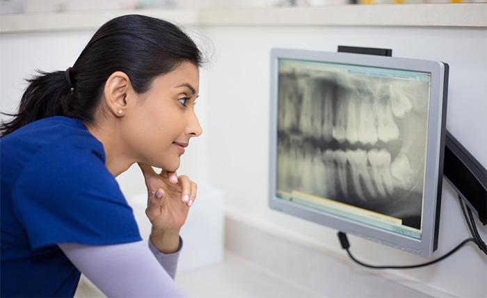 dental assistant examining dental x-ray at dentist office