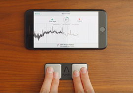 KardiaMobile: Frequently Asked Questions about Mobile EKG Monitors